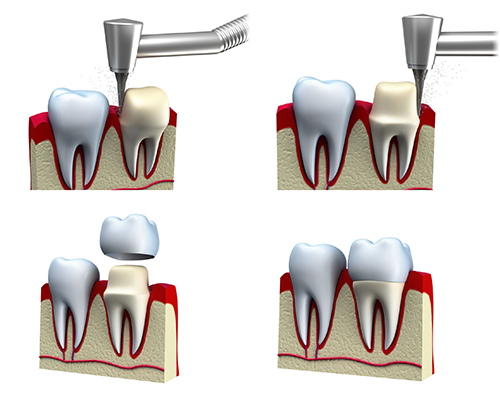 14453294 - dental crown installation process, isolated on white